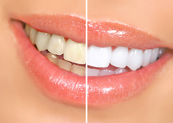 Whitening and Cosmetic Dental Work
